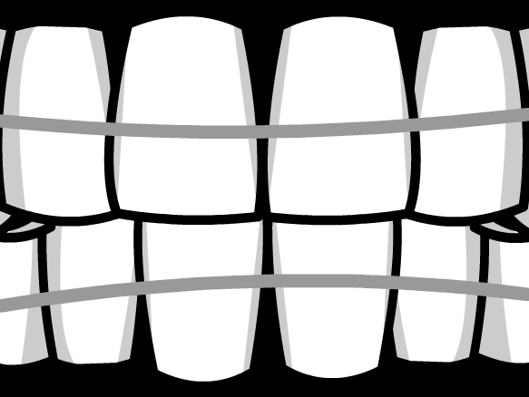 Image for Braces
